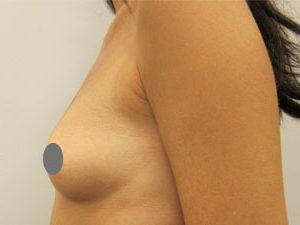 Innovervendte brystvorter