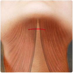 Hudsnitt & halsmuskler