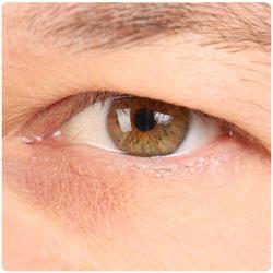 Tunge øyelokk